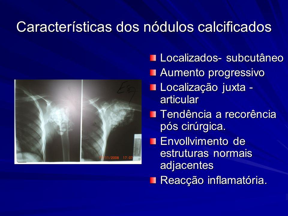 Características dos nódulos calcificados Localizados- subcutâneo Aumento progressivo Localização juxta - articular Tendência a recorência pós cirúrgica.