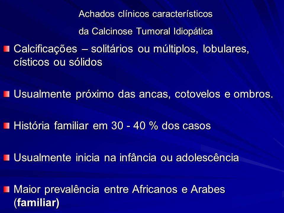 Achados clínicos característicos da Calcinose Tumoral Idiopática Calcificações – solitários ou múltiplos, lobulares, císticos ou sólidos Usualmente próximo das ancas, cotovelos e ombros.