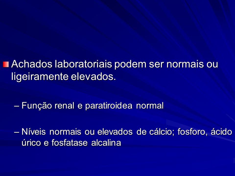 Achados laboratoriais podem ser normais ou ligeiramente elevados. –Função renal e paratiroidea normal –Níveis normais ou elevados de cálcio; fosforo,
