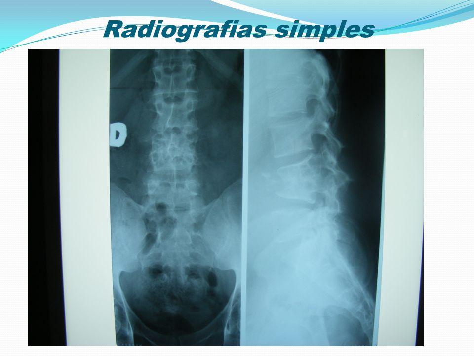 Radiografias simples