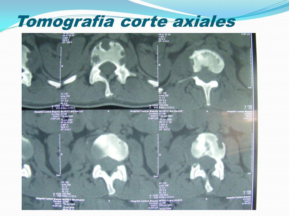 Tomografia corte axiales