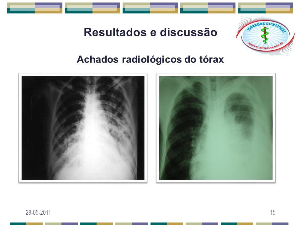 Resultados e discussão Achados radiológicos do tórax 28-05-201115