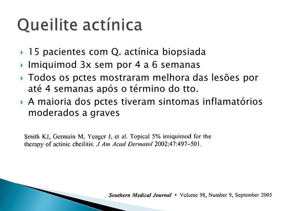 15 pacientes com Q. actínica biopsiada Imiquimod 3x sem por 4 a 6 semanas Todos os pctes mostraram melhora das lesões por até 4 semanas após o término