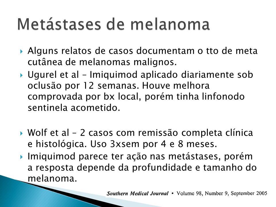 Alguns relatos de casos documentam o tto de meta cutânea de melanomas malignos. Ugurel et al – Imiquimod aplicado diariamente sob oclusão por 12 seman