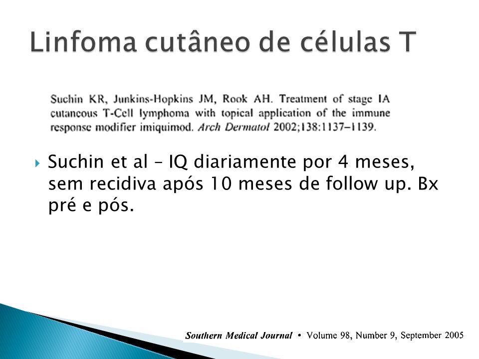 Suchin et al – IQ diariamente por 4 meses, sem recidiva após 10 meses de follow up. Bx pré e pós.