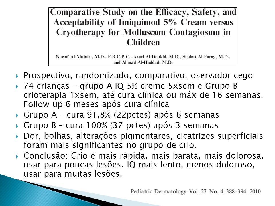 Prospectivo, randomizado, comparativo, oservador cego 74 crianças – grupo A IQ 5% creme 5xsem e Grupo B crioterapia 1xsem, até cura clínica ou máx de