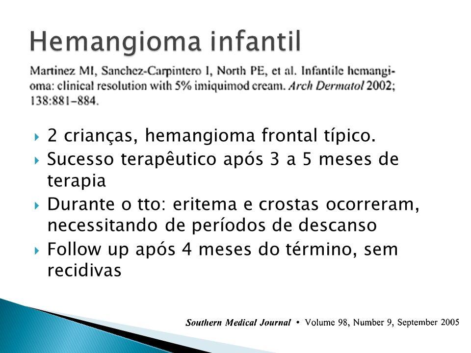 2 crianças, hemangioma frontal típico. Sucesso terapêutico após 3 a 5 meses de terapia Durante o tto: eritema e crostas ocorreram, necessitando de per