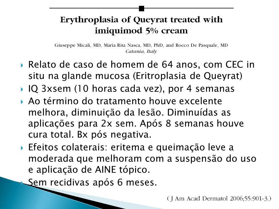 Relato de caso de homem de 64 anos, com CEC in situ na glande mucosa (Eritroplasia de Queyrat) IQ 3xsem (10 horas cada vez), por 4 semanas Ao término