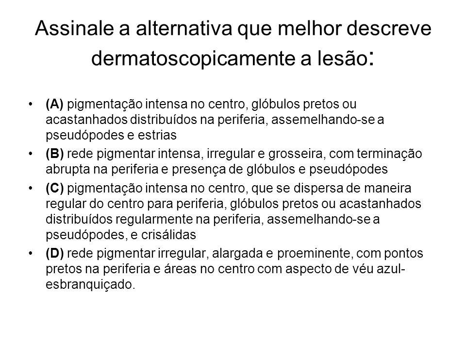 Assinale a alternativa que melhor descreve dermatoscopicamente a lesão : (A) pigmentação intensa no centro, glóbulos pretos ou acastanhados distribuíd