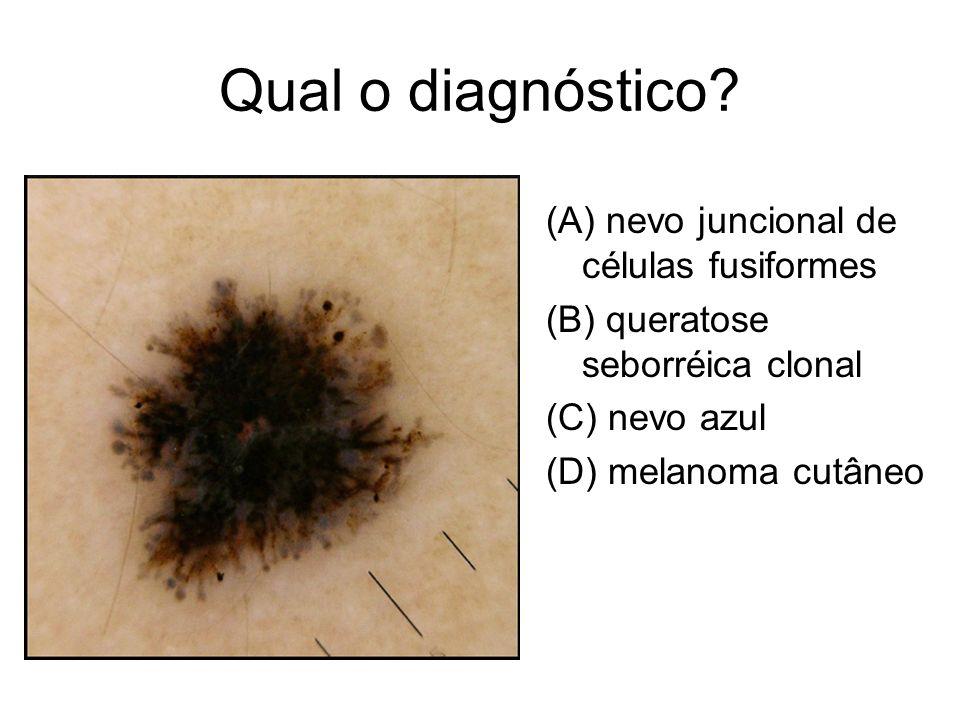 Qual o diagnóstico? (A) nevo juncional de células fusiformes (B) queratose seborréica clonal (C) nevo azul (D) melanoma cutâneo