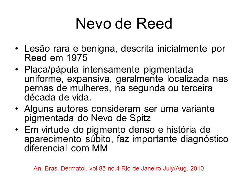 Nevo de Reed Lesão rara e benigna, descrita inicialmente por Reed em 1975 Placa/pápula intensamente pigmentada uniforme, expansiva, geralmente localiz