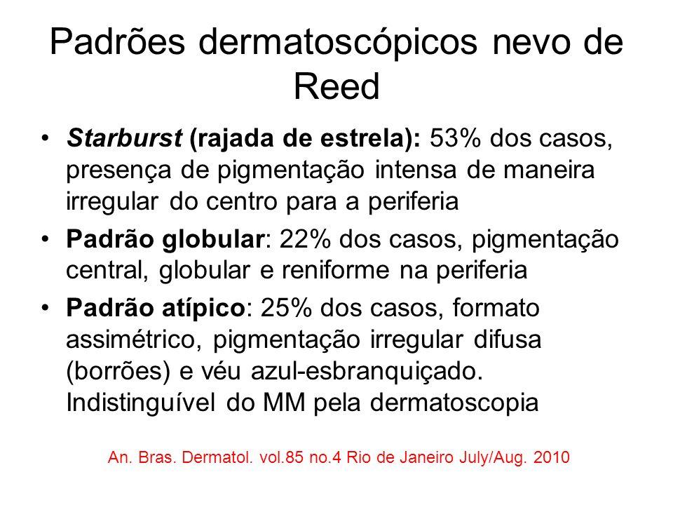 Padrões dermatoscópicos nevo de Reed Starburst (rajada de estrela): 53% dos casos, presença de pigmentação intensa de maneira irregular do centro para