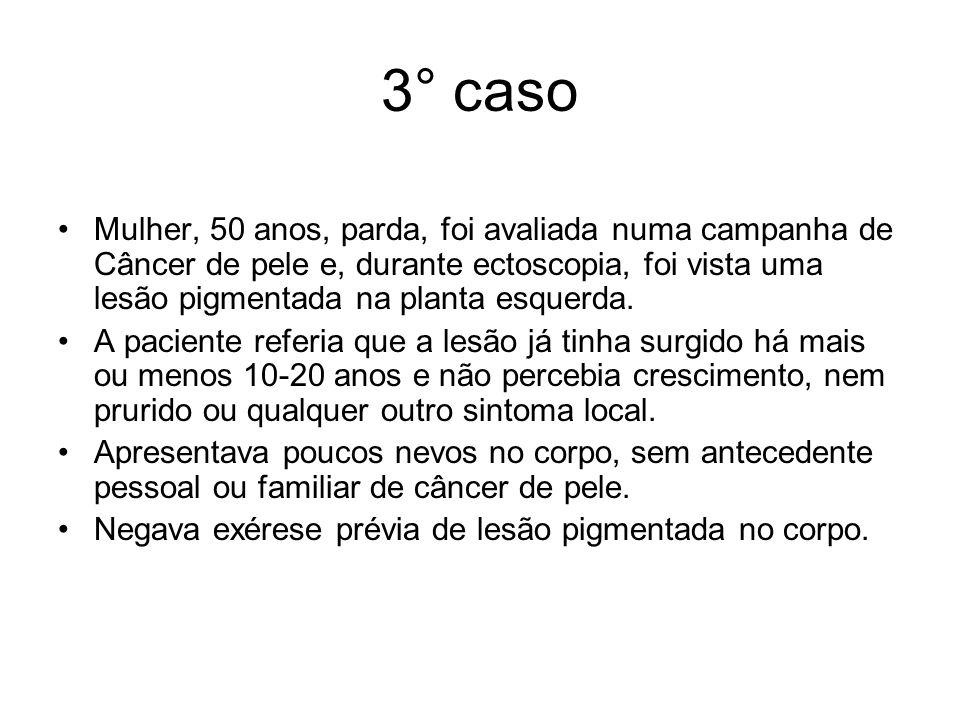 3° caso Mulher, 50 anos, parda, foi avaliada numa campanha de Câncer de pele e, durante ectoscopia, foi vista uma lesão pigmentada na planta esquerda.
