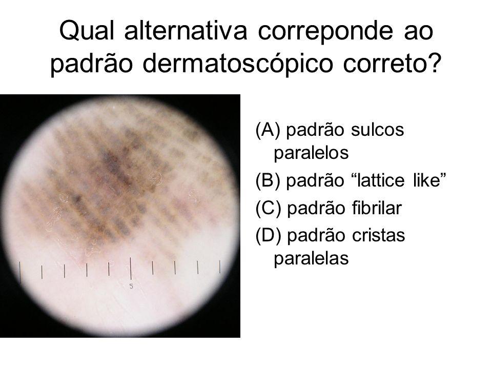 Qual alternativa correponde ao padrão dermatoscópico correto? (A) padrão sulcos paralelos (B) padrão lattice like (C) padrão fibrilar (D) padrão crist