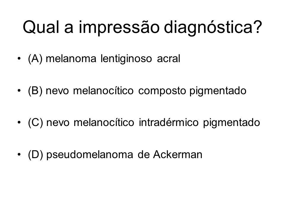 Qual a impressão diagnóstica? (A) melanoma lentiginoso acral (B) nevo melanocítico composto pigmentado (C) nevo melanocítico intradérmico pigmentado (