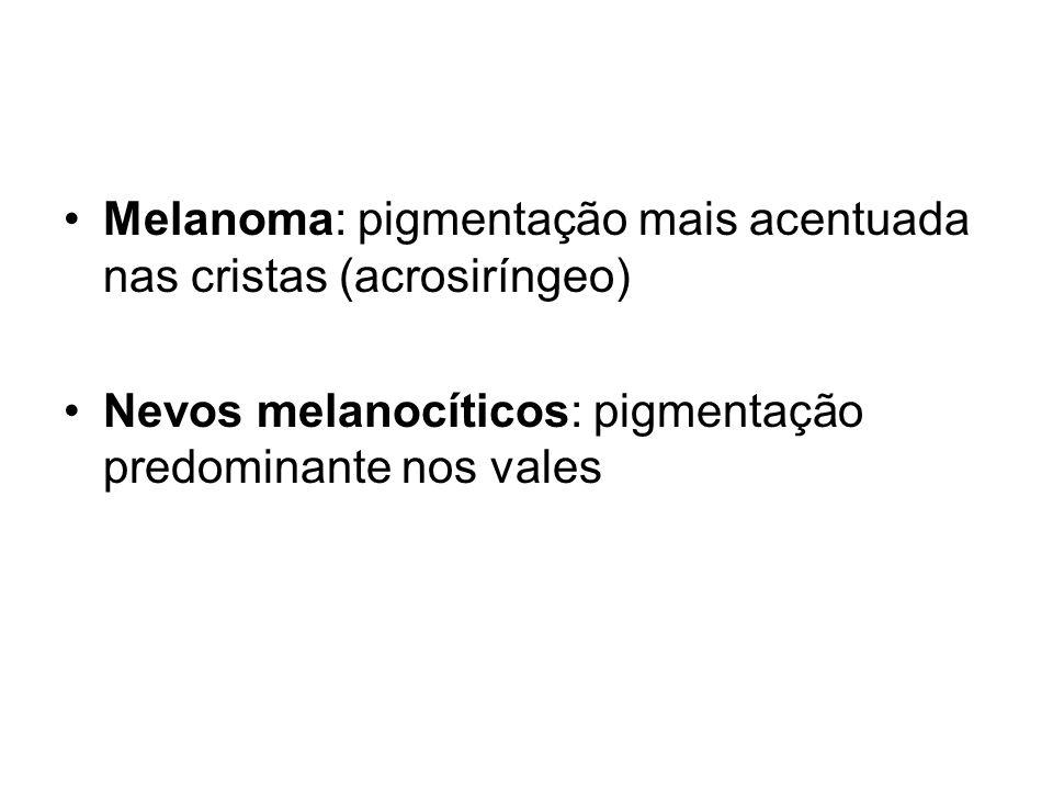 Melanoma: pigmentação mais acentuada nas cristas (acrosiríngeo) Nevos melanocíticos: pigmentação predominante nos vales