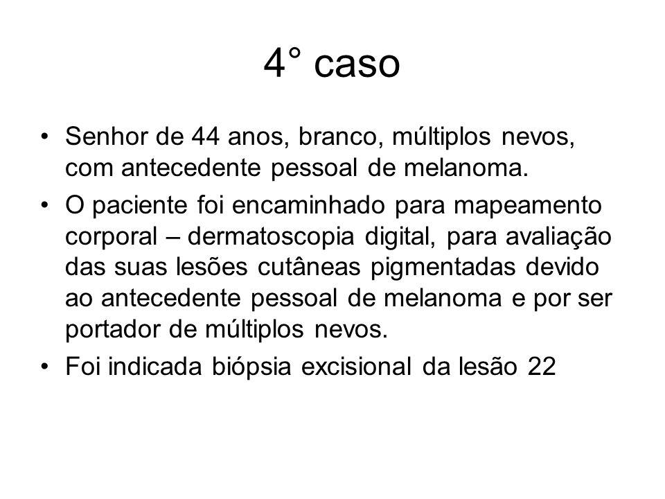 4° caso Senhor de 44 anos, branco, múltiplos nevos, com antecedente pessoal de melanoma. O paciente foi encaminhado para mapeamento corporal – dermato