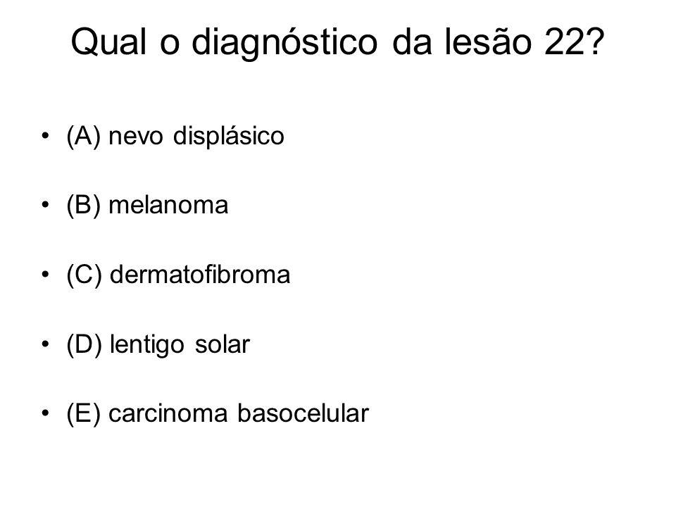 Qual o diagnóstico da lesão 22? (A) nevo displásico (B) melanoma (C) dermatofibroma (D) lentigo solar (E) carcinoma basocelular