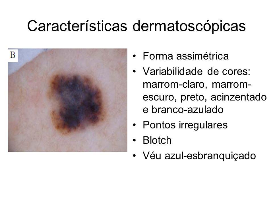 Características dermatoscópicas Forma assimétrica Variabilidade de cores: marrom-claro, marrom- escuro, preto, acinzentado e branco-azulado Pontos irr
