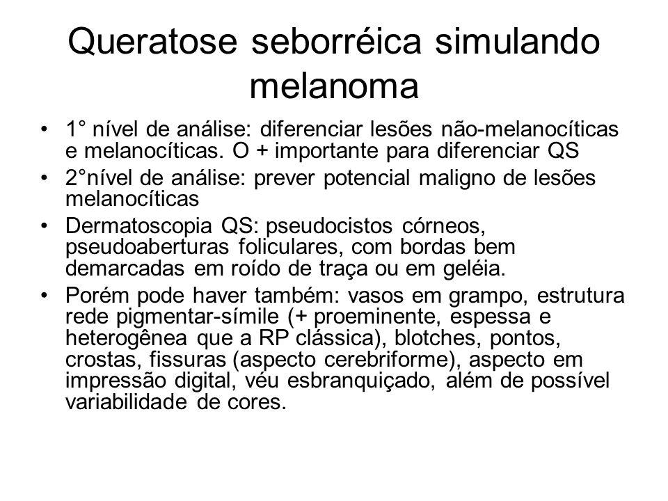 Queratose seborréica simulando melanoma 1° nível de análise: diferenciar lesões não-melanocíticas e melanocíticas. O + importante para diferenciar QS