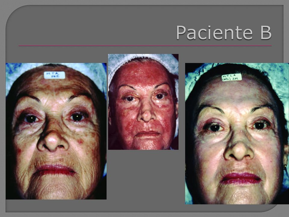 De acordo com cada paciente é permitido uso de maquiagem hipoalergênica após a segunda semana pós-peeling Após a sexta semana – bloqueador solar