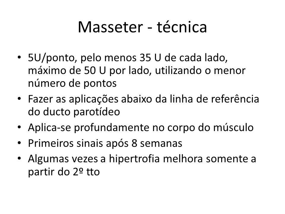 Masseter - técnica 5U/ponto, pelo menos 35 U de cada lado, máximo de 50 U por lado, utilizando o menor número de pontos Fazer as aplicações abaixo da