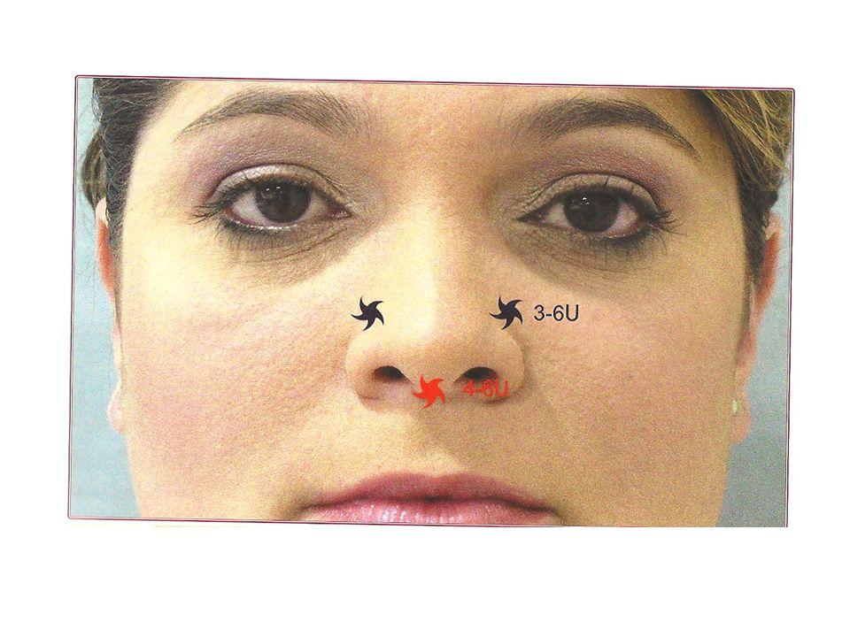 Lábios - técnicas Lábio inferior: – Seu tto concomitante traz resultado cosmético melhor – Máximo 4 U em 2 pontos, superficiais Rugas do lábio até a narina – Pontos próximos a narina na mesma projeção dos pontos para os elevadores do lábio superior, porém superficialmente – Máximo 6 U, em 2-4 pontos equidistantes