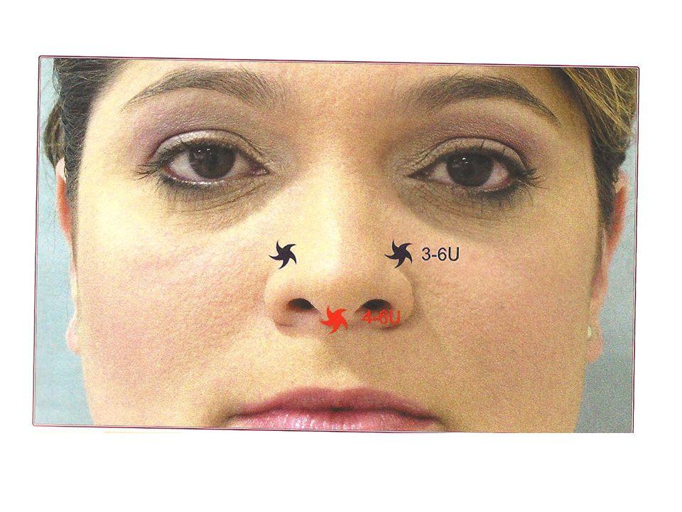 Depressor do ângulo da boca - complicações Dor transitória Assimetria transitória (até 48h) – um lado começou a atuar antes do outro Não melhora.