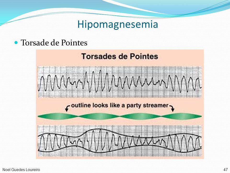 Hipomagnesemia Torsade de Pointes 47Noel Guedes Loureiro