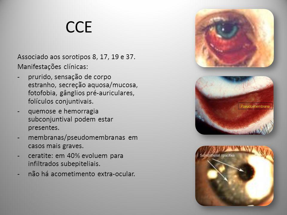 CCE Associado aos sorotipos 8, 17, 19 e 37. Manifestações clínicas: -prurido, sensação de corpo estranho, secreção aquosa/mucosa, fotofobia, gânglios
