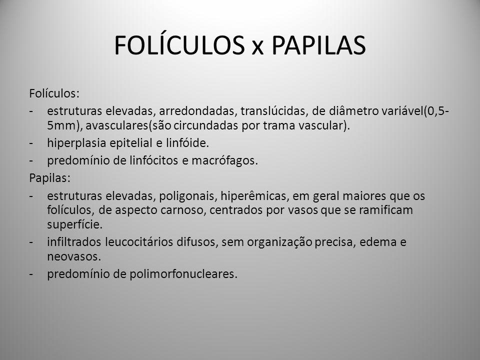 FOLÍCULOS x PAPILAS Folículos: -estruturas elevadas, arredondadas, translúcidas, de diâmetro variável(0,5- 5mm), avasculares(são circundadas por trama