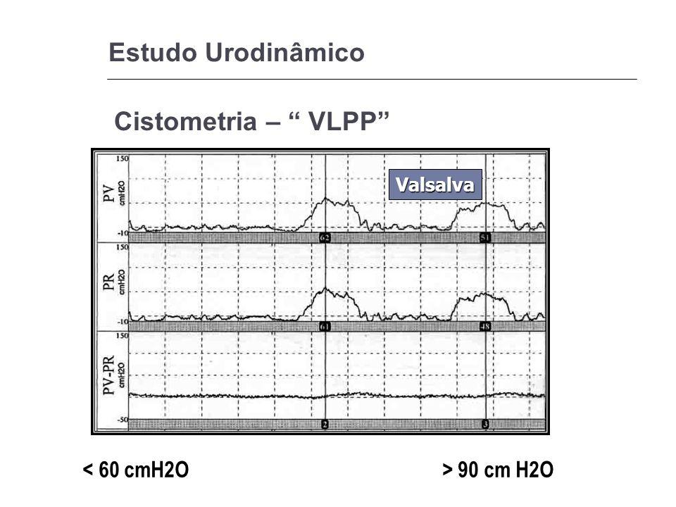 Estudo Urodinâmico Cistometria – VLPP Valsalva 90 cm H2O