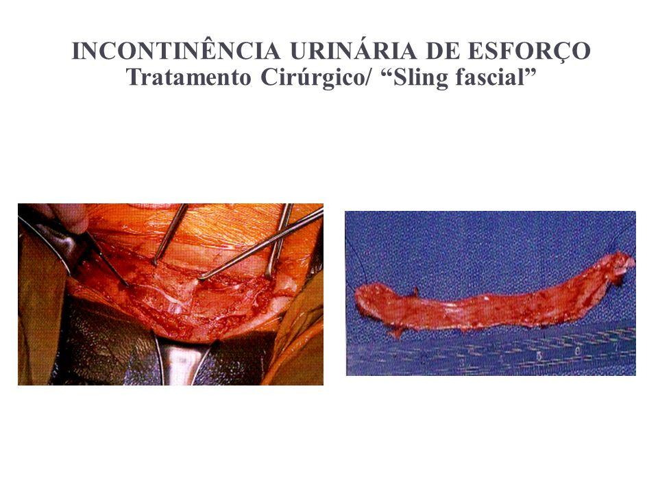 INCONTINÊNCIA URINÁRIA DE ESFORÇO Tratamento Cirúrgico/ Sling fascial