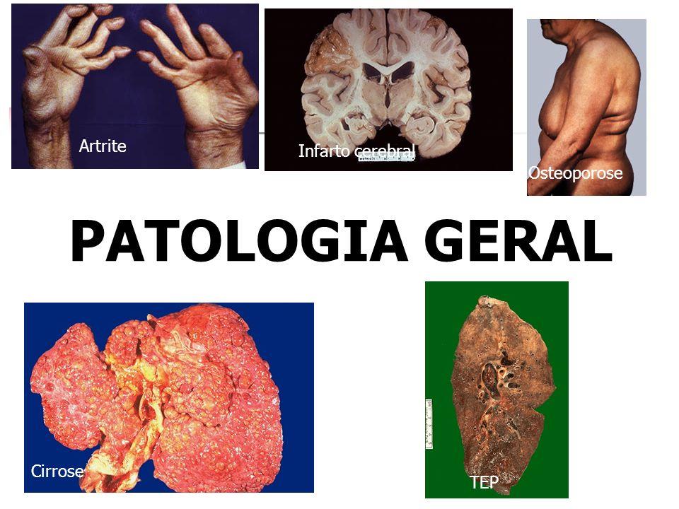 PATOLOGIA GERAL Osteoporose Artrite TEP Cirrose Infarto cerebral