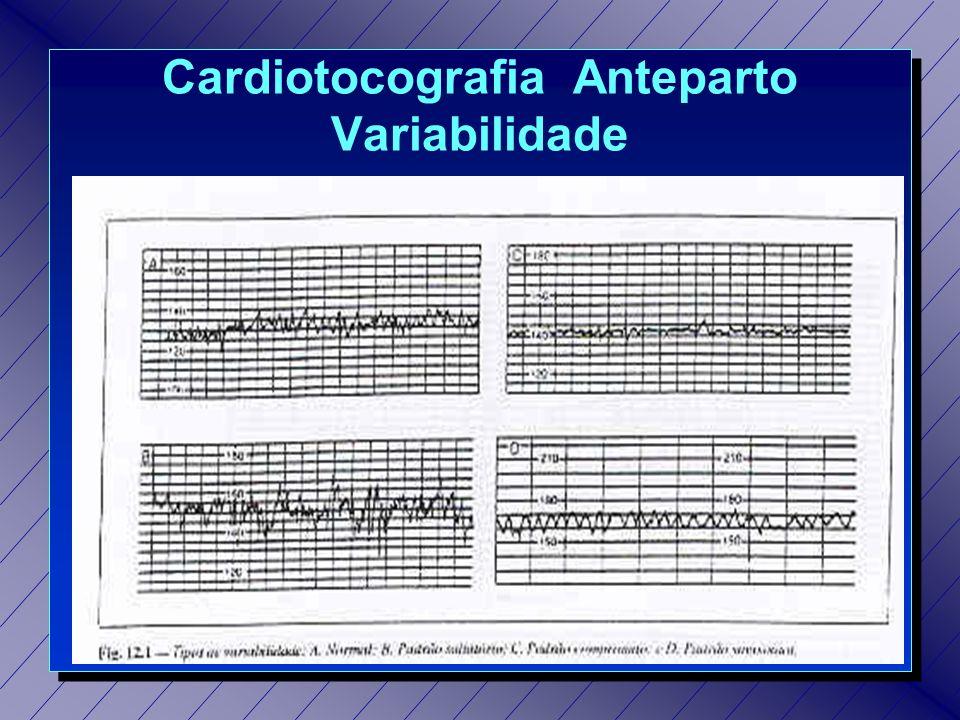 Cardiotocografia Estimulada (TES) n Feto Reativo: amplitude >20 bpm durante pelo menos 3 durante pelo menos 3