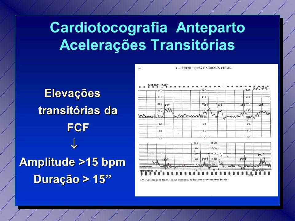 Cardiotocografia Estimulada (TES) Feto Hiporreativo: amplitude <20bpm e/ou duração < 3 amplitude <20bpm e/ou duração < 3