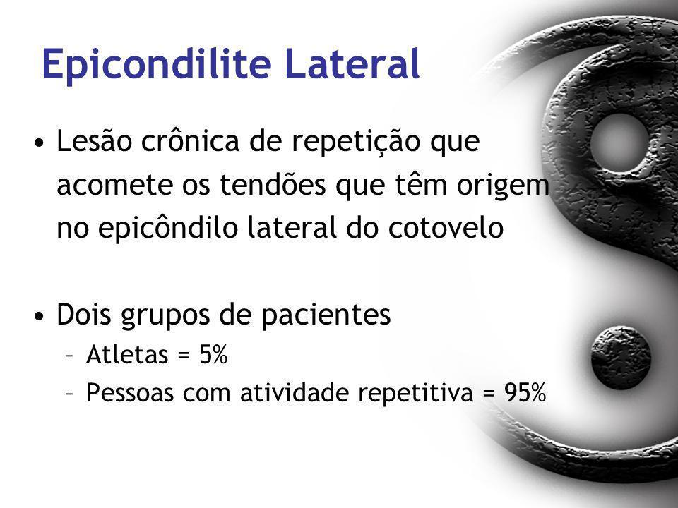 Epicondilite Lateral Lesão crônica de repetição que acomete os tendões que têm origem no epicôndilo lateral do cotovelo Dois grupos de pacientes –Atle