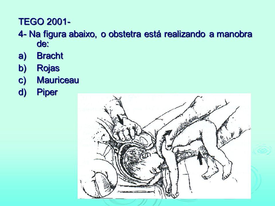 TEGO 2001- 4- Na figura abaixo, o obstetra está realizando a manobra de: a)Bracht b)Rojas c)Mauriceau d)Piper