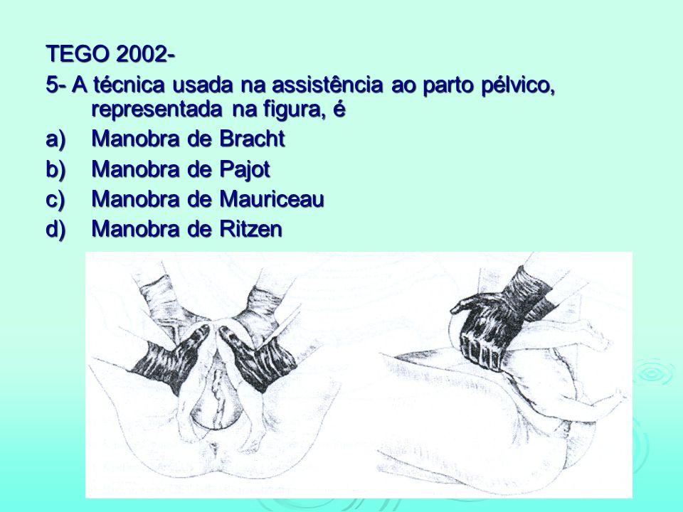 TEGO 2002- 5- A técnica usada na assistência ao parto pélvico, representada na figura, é a)Manobra de Bracht b)Manobra de Pajot c)Manobra de Mauriceau