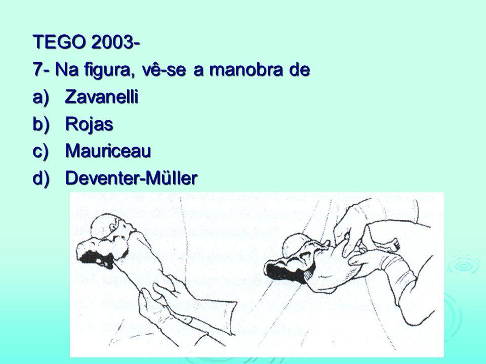 TEGO 2003- 7- Na figura, vê-se a manobra de a)Zavanelli b)Rojas c)Mauriceau d)Deventer-Müller