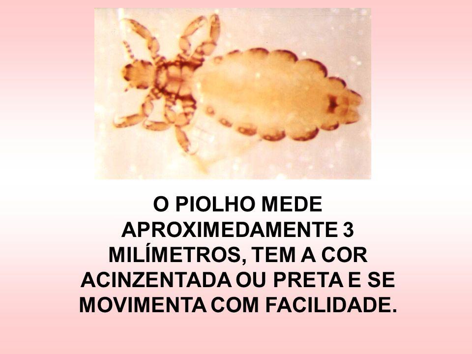 OS OVOS DO PIOLHO SÃO AS LÊNDEAS, QUE FICAM GRUDADAS NO FIO DO CABELO.