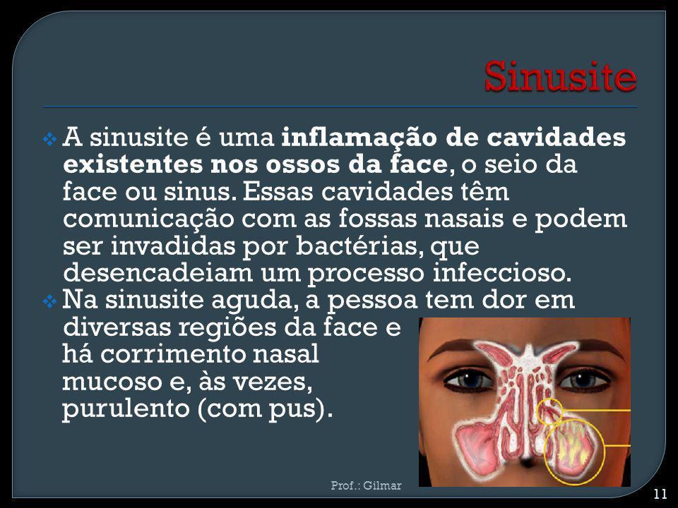 A sinusite é uma inflamação de cavidades existentes nos ossos da face, o seio da face ou sinus. Essas cavidades têm comunicação com as fossas nasais e