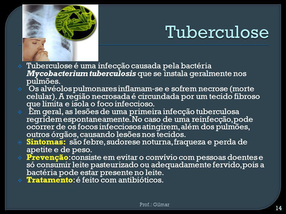 Tuberculose é uma infecção causada pela bactéria Mycobacterium tuberculosis que se instala geralmente nos pulmões. Os alvéolos pulmonares inflamam-se