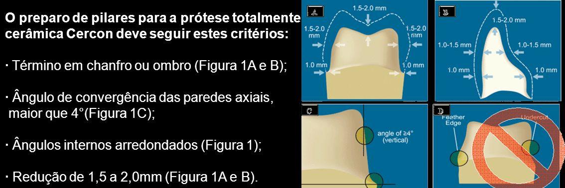 O preparo de pilares para a prótese totalmente cerâmica Cercon deve seguir estes critérios: · Término em chanfro ou ombro (Figura 1A e B); · Ângulo de