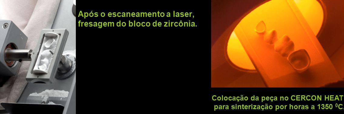 Após o escaneamento a laser, fresagem do bloco de zircônia. Colocação da peça no CERCON HEAT para sinterização por horas a 1350 0 C.