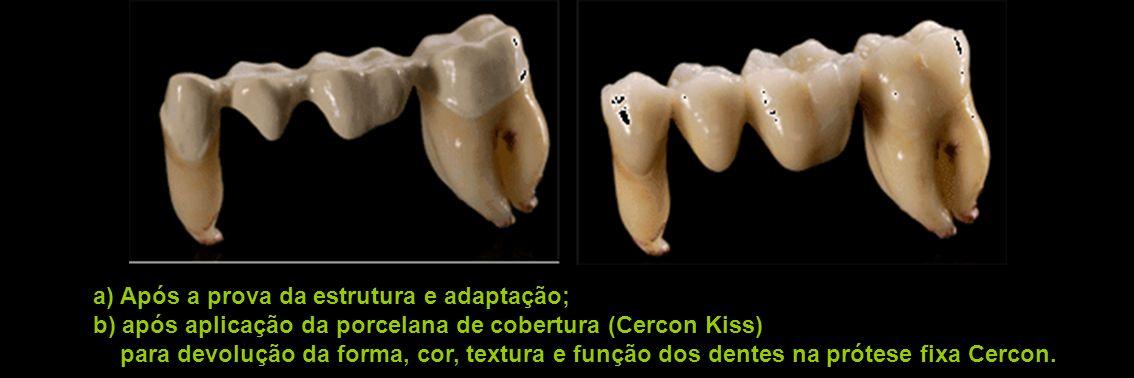 a) Após a prova da estrutura e adaptação; b) após aplicação da porcelana de cobertura (Cercon Kiss) para devolução da forma, cor, textura e função dos