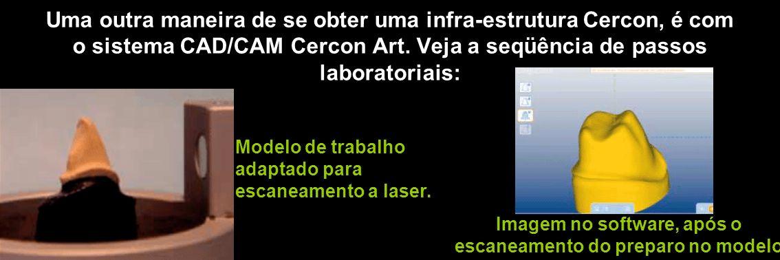 Uma outra maneira de se obter uma infra-estrutura Cercon, é com o sistema CAD/CAM Cercon Art. Veja a seqüência de passos laboratoriais: Modelo de trab