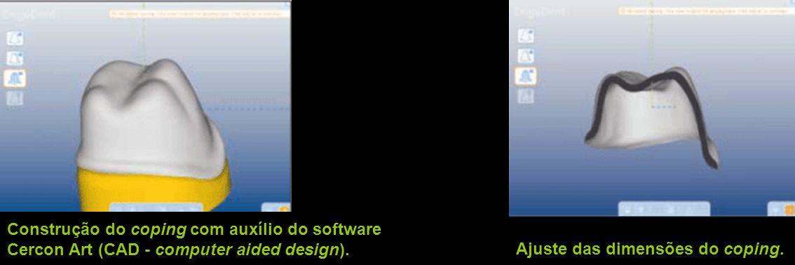 Construção do coping com auxílio do software Cercon Art (CAD - computer aided design). Ajuste das dimensões do coping.