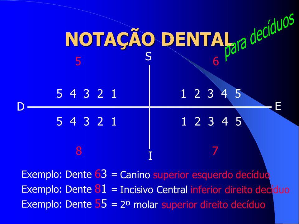 1 2 3 4 5 5 4 3 2 1 S I D E 56 78 Exemplo: Dente 63 = Exemplo: Dente 81 = Exemplo: Dente 55 = Canino superior esquerdo decíduo Incisivo Central inferi