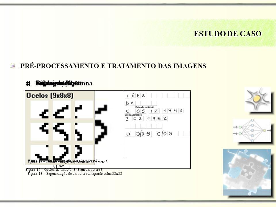 Subamostragem Binarização Filtragem Mediana Segmentação ESTUDO DE CASO PRÉ-PROCESSAMENTO E TRATAMENTO DAS IMAGENS Ocelos de Visão Figura 13 – Segmenta